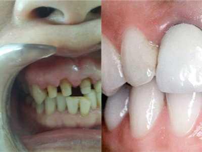 牙齿根部黑色 找出具体原因巧妙解决